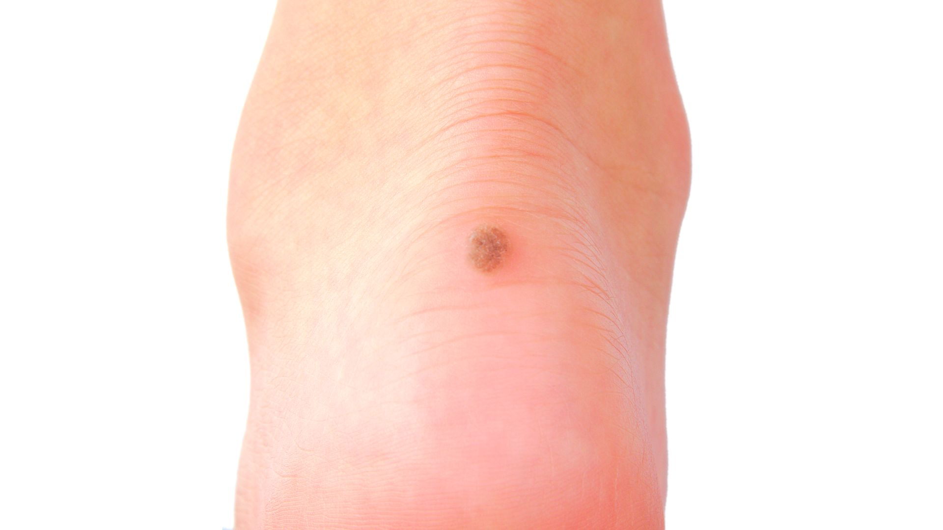 Skin Cancer of the Foot and Ankle