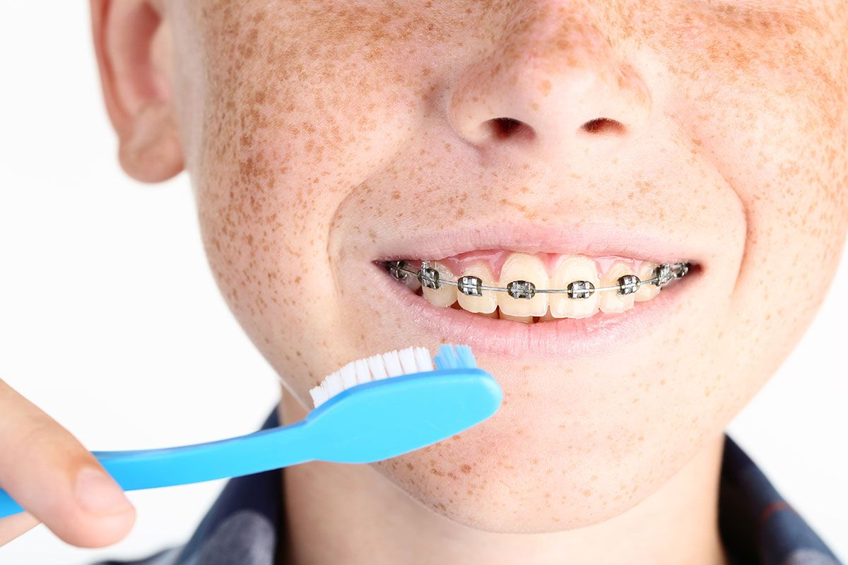 Exploring the Best Tools to Use at Home to Clean Your Teeth in Braces